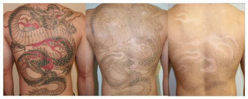 Удаление цветной тату фото до и после