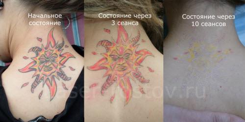 Удаление цветной тату фото до и после - 1