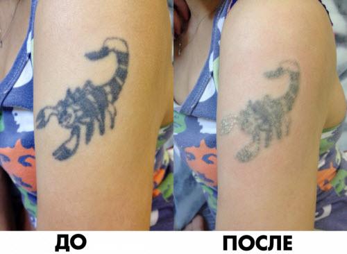 Удаление цветной тату фото до и после - 2