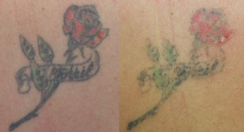 Удаление цветной тату фото до и после - 4