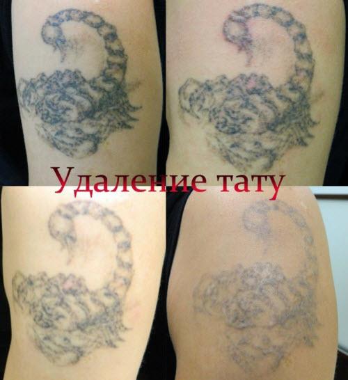 Удаление цветной тату фото до и после - 5