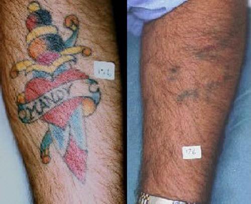 Удаление цветной тату фото до и после - 8