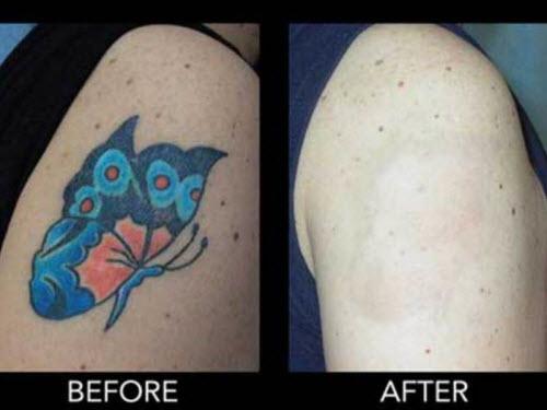 Удаление цветной тату фото до и после - 9